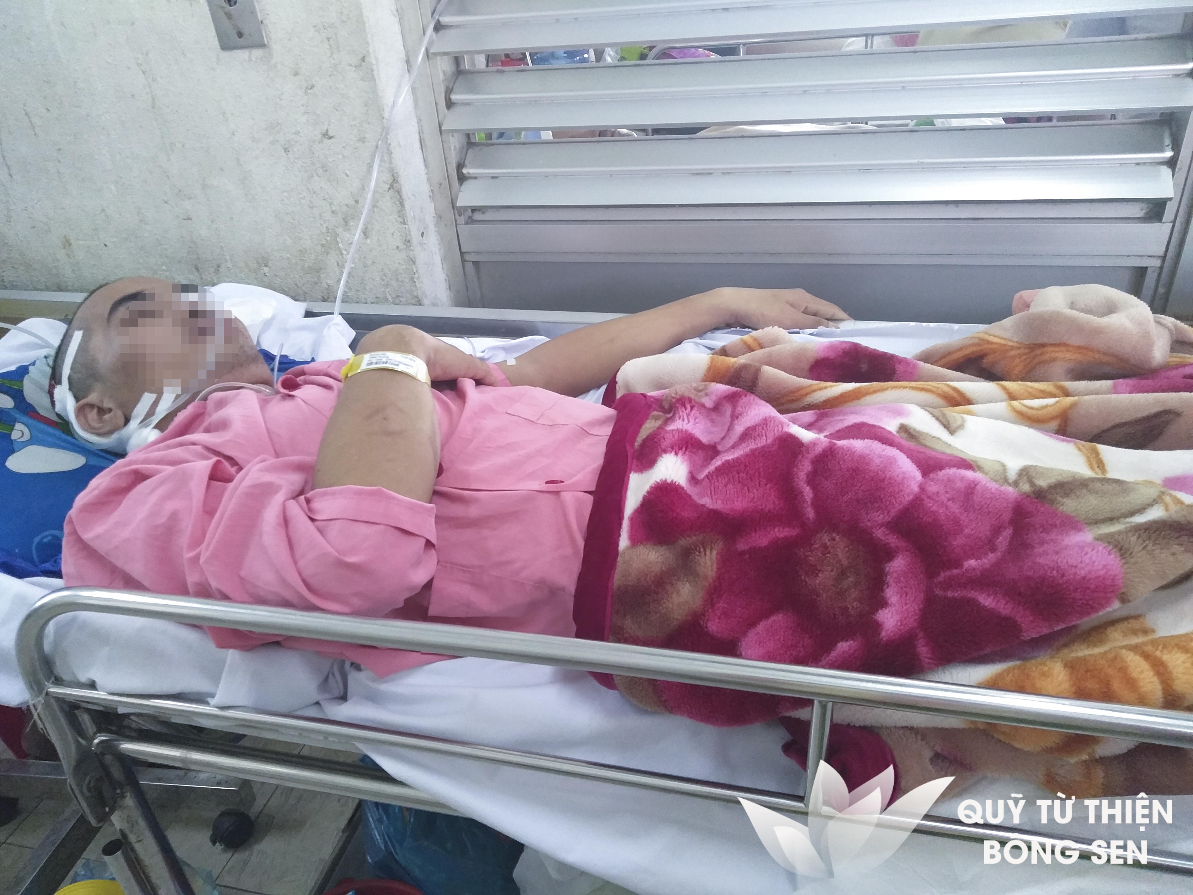 Kỳ 380: Bệnh Nhân Y Bảo Trung (sinh 1988) Quê Bình Thuận, U Dây Thần Kinh Số 8, Hỗ Trợ 11.000.000 Đồng Ngày 09/08/2018