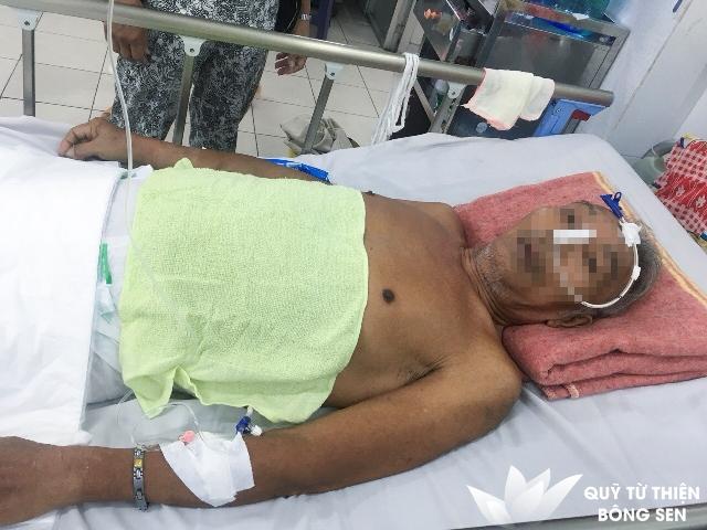 Kỳ 385: Trần Văn Việt (sinh năm 1945) quê Long An,  Nhồi máu não bán cầu, tăng huyết áp, hỗ trợ 7.000.000 đồng ngày 20/09/2018