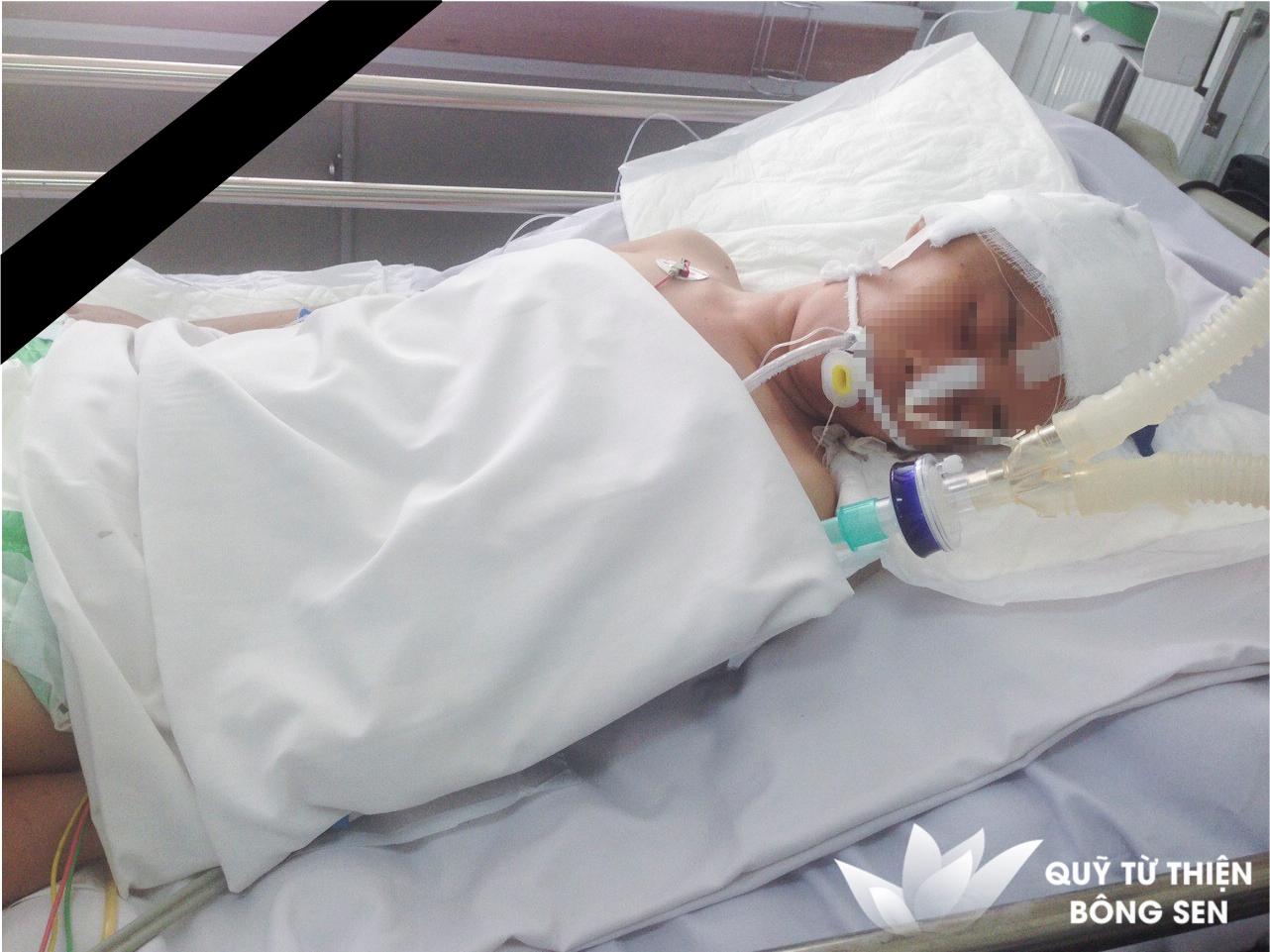 Kỳ 387: Lê Thị Cẩm Tú, quê Kiên Giang, xuất huyết dưới nhệnh, túi phình động mạch, hỗ trợ 7.000.000 đồng ngày 05/10/2018