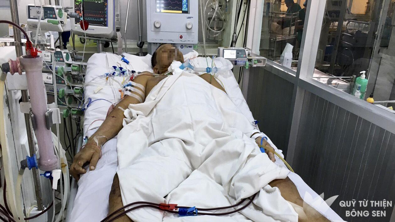 Kỳ 393: Lê Hoàng Minh (sinh năm 1972) quê Thủ Đức, suy tim suy thận, hỗ trợ 10 triệu đồng ngày 16/11/2018