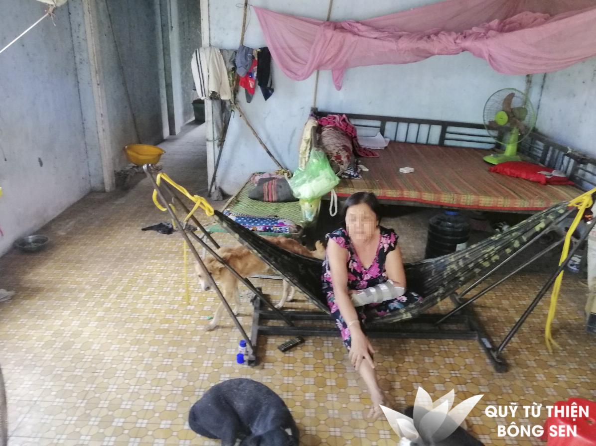 Kỳ 405: Lê Thị Minh (sinh năm 1968) ở Tây Ninh, gãy xương tay, hỗ trợ 17 triệu đồng ngày 20/03/2019