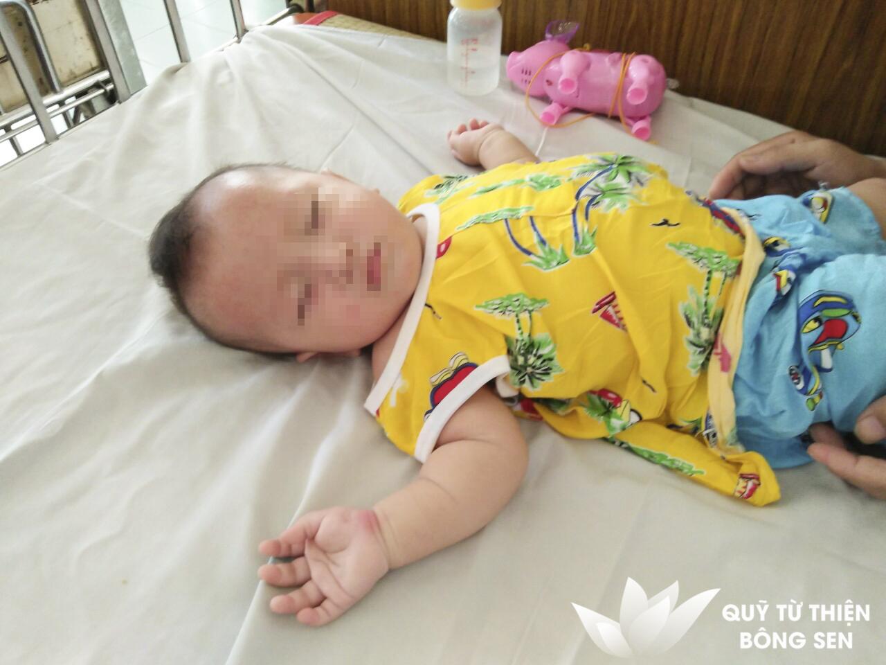 Kỳ 409: Nguyễn Huy Hào (1 tuổi) quê Đắk Nông, tim bẩm sinh, hỗ trợ 14 triệu đồng ngày 26/04/2019