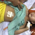 Kỳ 415: Xin chung tay giúp bé Sâng bị u hốc mắt (Cập nhật ngày 11/06/2019)