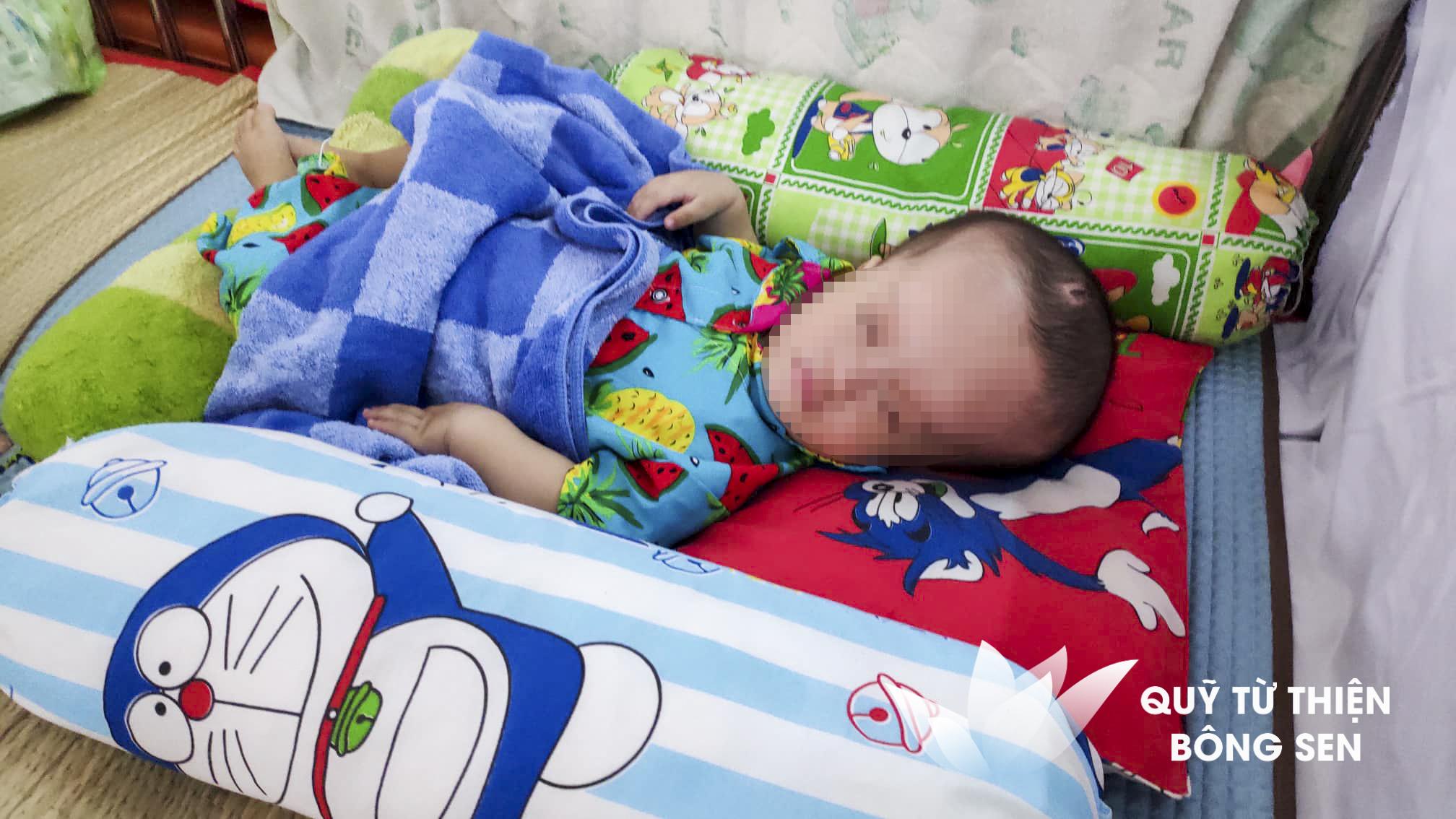 Kỳ 430: Lê Huỳnh Gia Lộc (1 tuổi) quê Cà Mau, Úng thủy não, hỗ trợ 17 triệu đồng ngày 19/08/2019