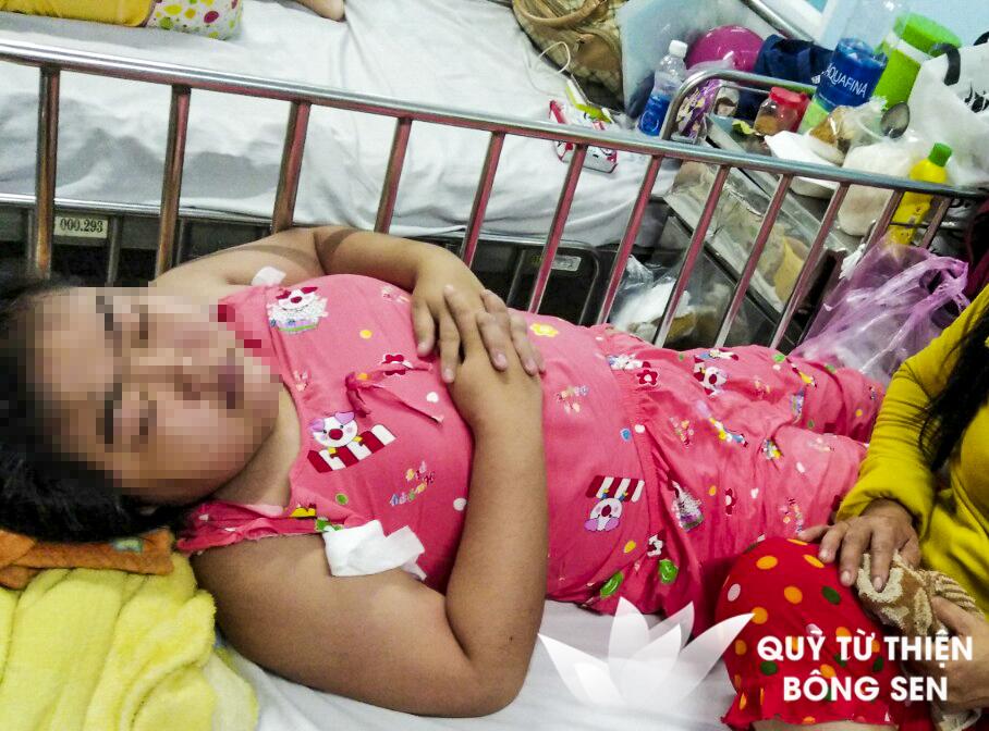 Kỳ 436: Xin giúp em 30 triệu đồng phẫu thuật khối u 8 năm trên lưng