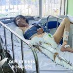 Kỳ 452: Xót xa người phụ nữ tàn tật chẳng may bị xe tông